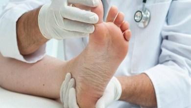 Photo of هذه هي الأسباب الأكثر شيوعاً لآلام القدمين!
