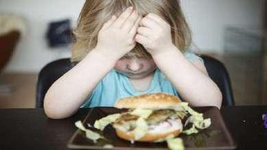 Photo of حساسية الطعام لدى الأطفال قد ترتبط بالتوحد