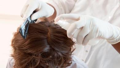 Photo of لهذه الأسباب يتساقط الشعر… وهذه علاجاته
