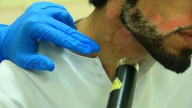 Photo of «الإبر الجراحية» تعالج البهاق خلال 6 إلى 10 أشهر