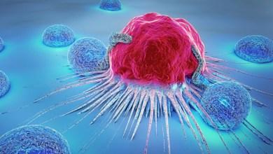 Photo of البدانة مسؤولة عن كثير من حالات الإصابة بالسرطان