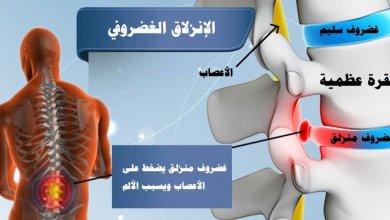 Photo of هل تعرف الانزلاق الغضروفي؟.. 6 خرافات شائعة عن آلام الظهر والرقبة