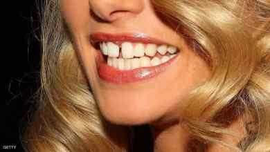 "Photo of دراسة: أسنانك تكشف حالة ""صحتك العقلية"""