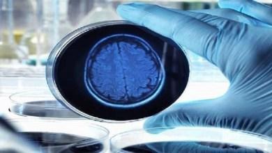 Photo of اكتشاف جديد يعطي أملا لعلاج الأعراض المبكرة لمرض ألزهايمر