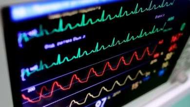 Photo of وزارة الأمن الداخلي الأمريكية تحذر من اختراق الهاكرز لأجهزة مرضى القلب