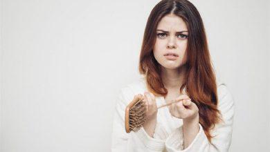 Photo of علاج غريب لتساقط الشعر يثير جدلًا بين الأطباء