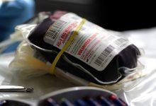 "Photo of ""بلازما"" المتعافين من فيروس كورونا تُنقذ حياة المصابين بالوباء؟"