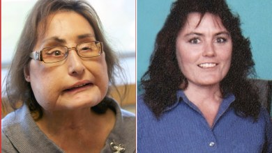 Photo of وفاة أول امرأة خضعت لزراعة وجه كامل في الولايات المتحدة