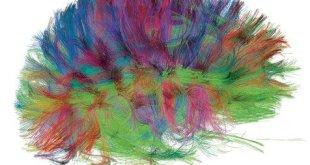 نوع جديد من مسوحات الدماغ يُظهر دوائر ومسارات عصبية سليمة في دماغ شخص بالغ