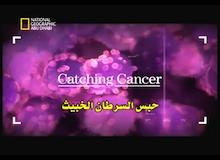 حبس السرطان الخبيث