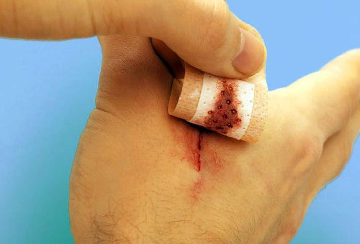 الجروح