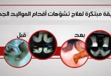 مقال – طريقة مبتكرة لعلاج تشوّهات أقدام المواليد الجدد