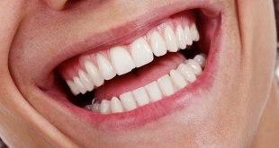 مقال - ما مدى فعالية الوصفات المنزلية لتبييض الأسنان؟