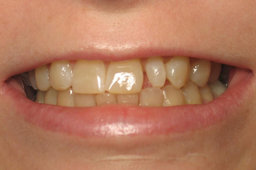 مقال - 6 أسباب غير مألوفة لإصفرار الأسنان - موقع علوم العرب
