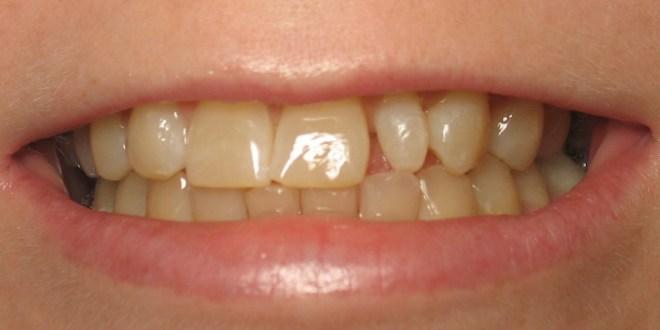 مقال - 6 أسباب غير مألوفة لإصفرار الأسنان