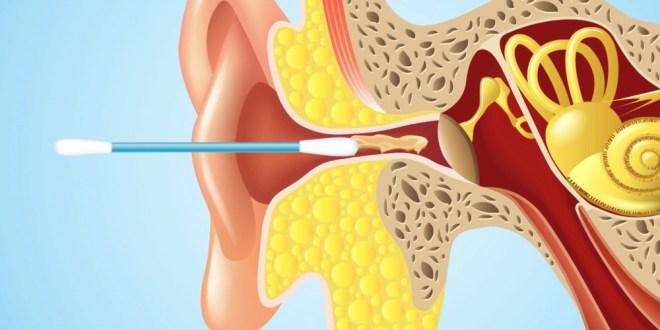 مقال - 5 أخطاء شائعة عند تنظيف الأذن