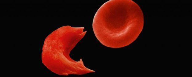 بتغيير شكل خلايا الدم الحمراء من الدائري إلى شكل شبيه بالمنجل
