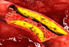 صورة مقال – 4 أغذية لخفض الكولسترول من دون دواء