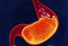 مقال - أعراض الحموضة الزائدة في الجسم وكيف تتغلب عليها