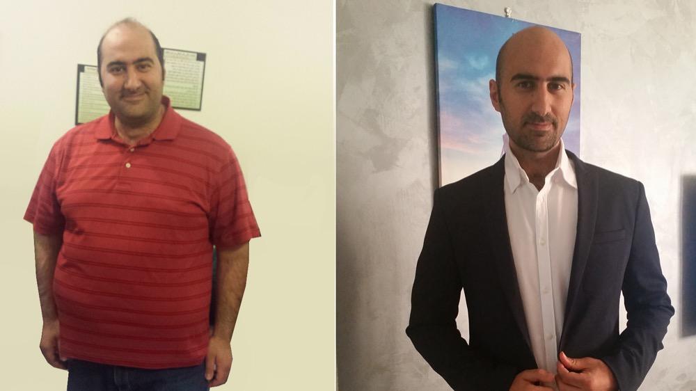 مقال - حميد أيوب: كيف فقدت 75 كلغ من وزني؟