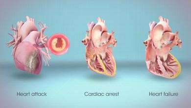 مقال - ما الفرق بين الذبحة الصدرية والنوبة القلبية والسكتة القلبية؟