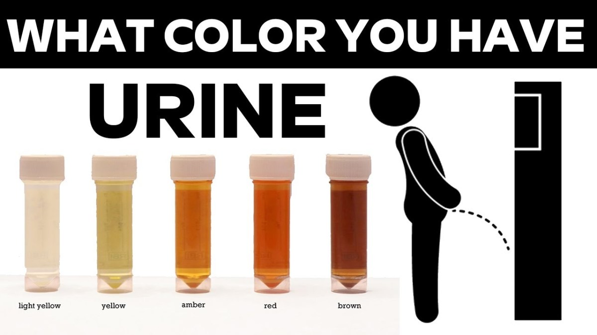 مقال - على ما يدل لون البول؟ وهل كثرة شرب الماء خطر؟