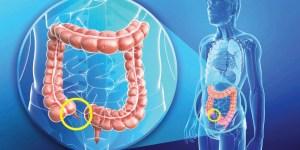 مقال - كيف أعرف إني مصاب بالزائدة ؟ هذه هي أعراض التهاب الزائدة الدودية