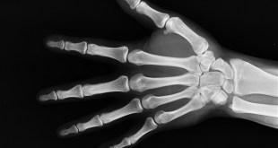 مقال – تعرّف على أبرز 8 عوامل قد تؤثر على صحة العظام!
