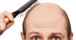 مقال – لماذا تهاجم البثور فروة الرأس وكيف تواجهها؟