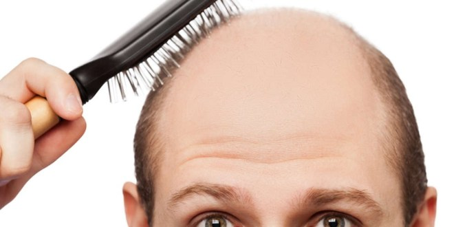 مقال - لماذا تهاجم البثور فروة الرأس وكيف تواجهها؟