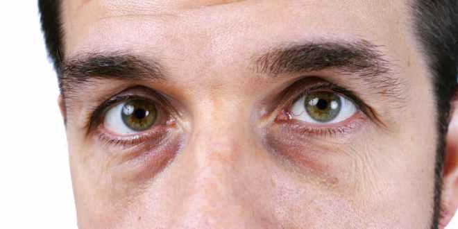 الهالات السوداء حول العين .. كيف تنشأ؟ وما علاجها؟