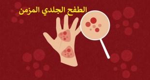 مقال – الطفح الجلدي المزمن: أعراضه وكيفية علاجه