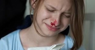 مقال – نزيف الأنف لدى الأطفال .. أسبابه و كيفية مواجهته