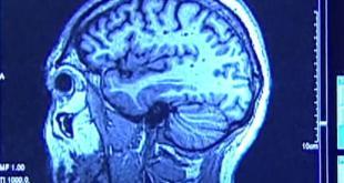 دراسة – مستويات عالية من التوتر يمكن أن تسبب تقلص دماغك