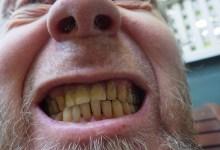 مقال – أسوأ 6 أطعمة لأسنانك
