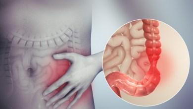 4 نصائح لإدارة متلازمة القولون العصبي