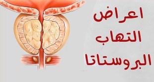 ما هي أعراض التهاب البروستات؟