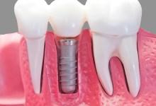 صورة 5 أسباب قد تؤدي لسقوط أسنانك في عمر مبكّر