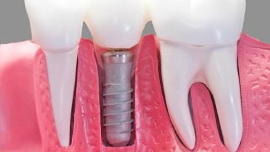 5 أسباب قد تؤدي لسقوط أسنانك في عمر مبكّر