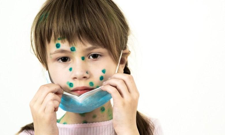 كيف نحد من الآثار الجانبية لارتداء الكمامة على بشرتنا؟