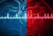 صورة ما هي أسباب دقات القلب السريعة ؟