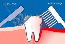 صورة أيهما أفضل فرشاة الأسنان الخشنة أم الناعمة ؟