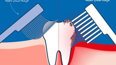 أيهما أفضل فرشاة الأسنان الخشنة أم الناعمة ؟