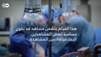التبرع بالأعضاء البشرية