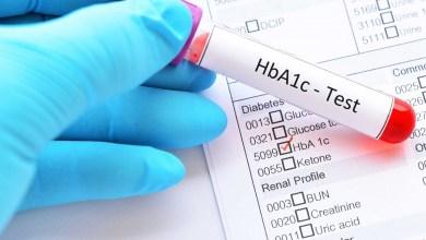 فحص سكر الدم التراكمي و4 نصائح لخفضه دون أدوية!