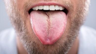 احذر .. 10 علامات يرسلها الجسم عليك عدم إهمالها!