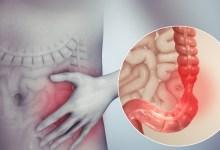 ماهي اعراض القولون العصبي ؟