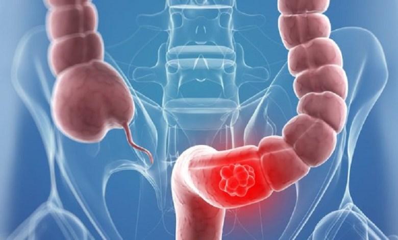 إنتبه هذه المشروبات تضاعف خطر الإصابة بسرطان الأمعاء !