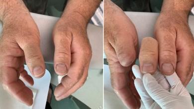 الأطراف الصناعية لليد والاصبع