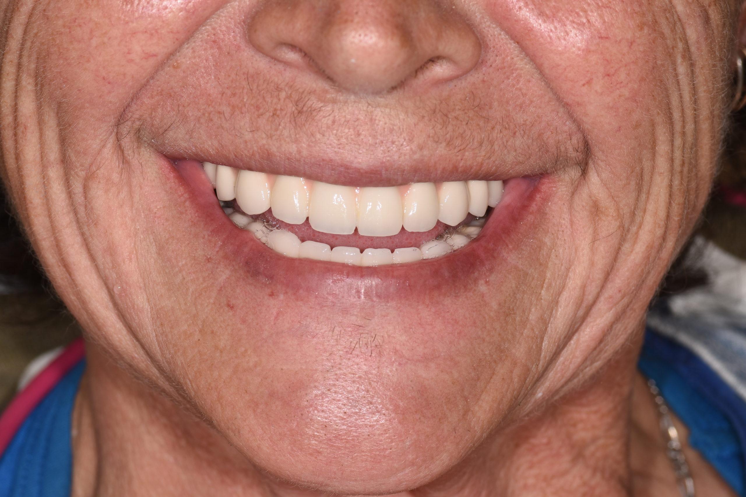 fixed dentures